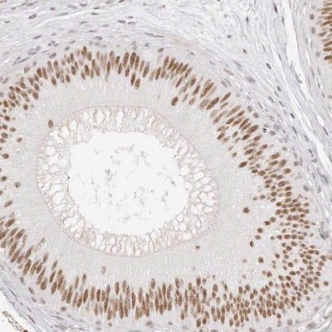 anti-LARP7, Polyclonal, Novus Biologicals 0.1mL; Unlabeled:Life Sciences