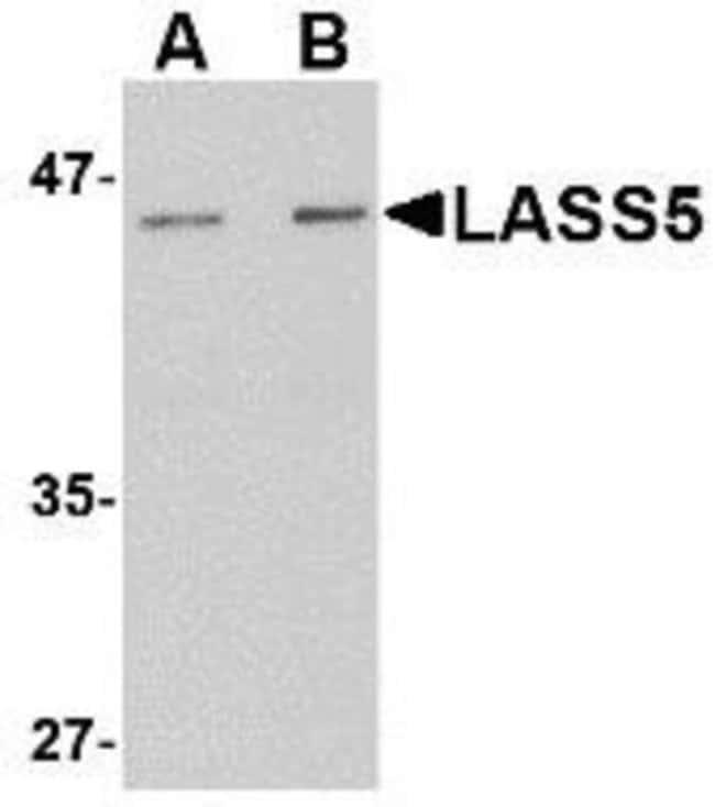 anti-Lass5, Polyclonal, Novus Biologicals 0.1mg; Unlabeled:Life Sciences