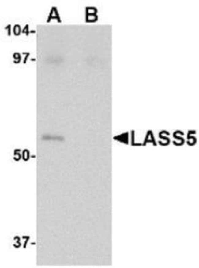 Novus Biologicals Lass5 Peptide 0.25mg:Life Sciences