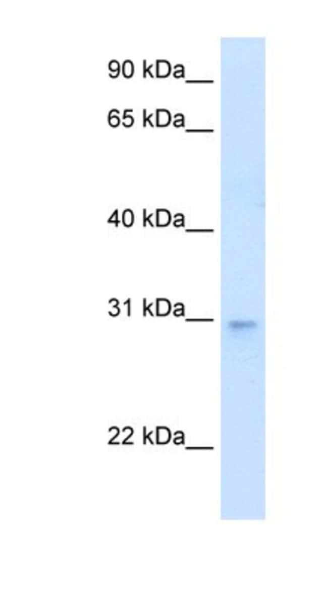 LDB3 Rabbit anti-Human, Polyclonal, Novus Biologicals 100µL; Unlabeled:Life