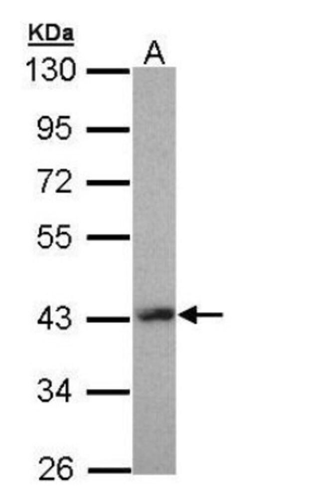 anti-Lhx8, Polyclonal, Novus Biologicals 0.1mg; Unlabeled:Antibodies