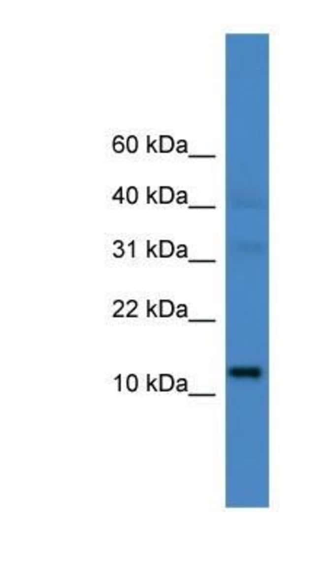 LINC00521 Rabbit anti-Human, Polyclonal, Novus Biologicals 20µL; Unlabeled