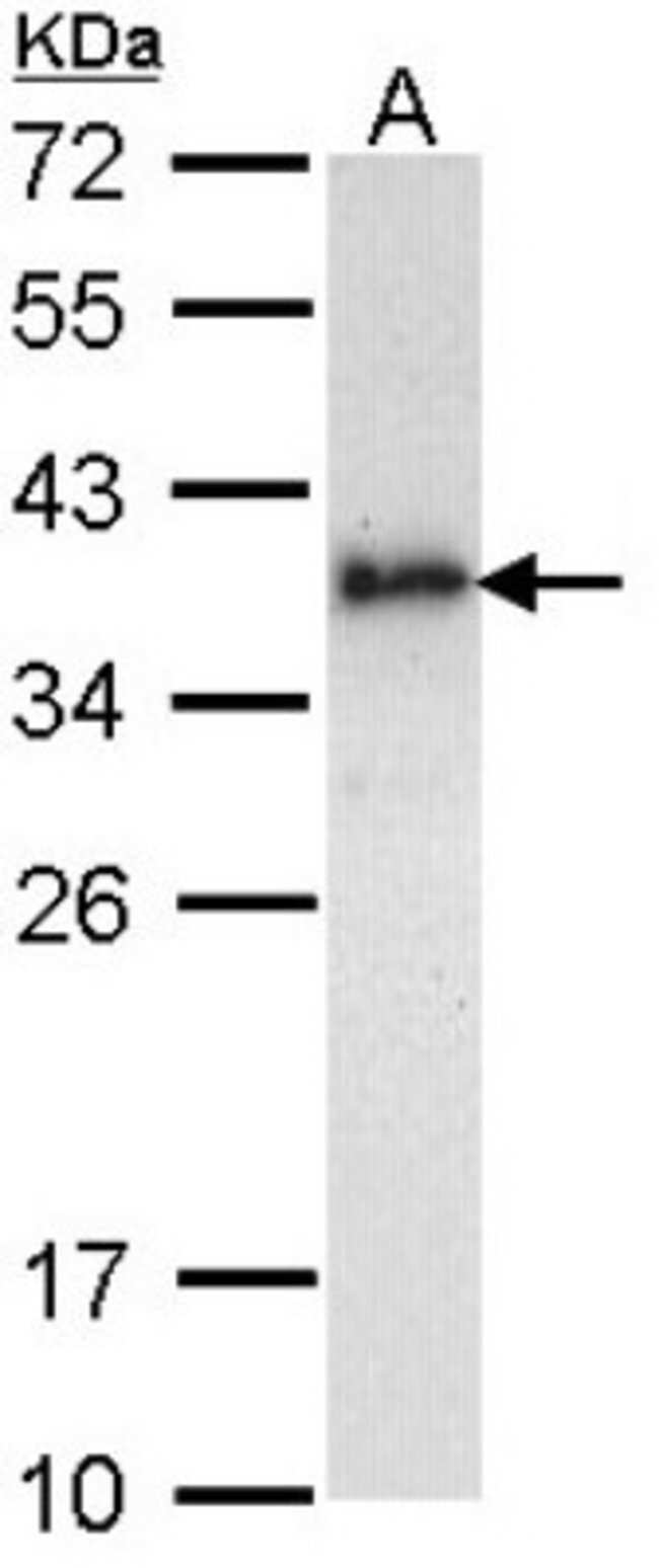 anti-Livin, Polyclonal, Novus Biologicals 0.1mL; Unlabeled:Life Sciences