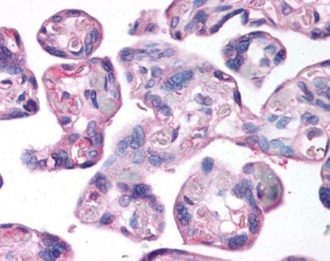 anti-LOX, Polyclonal, Novus Biologicals:Antibodies:Primary Antibodies