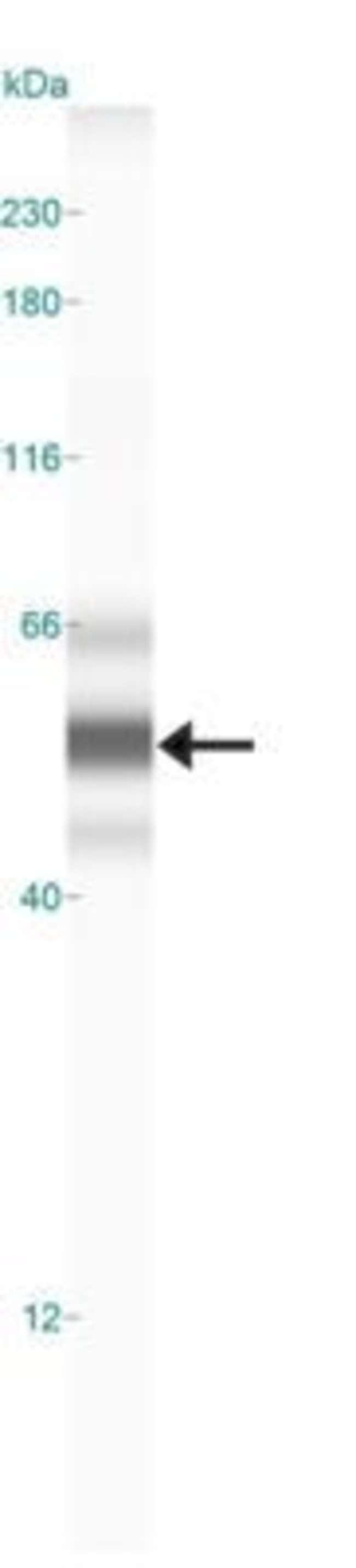 anti-LOX propeptide, Polyclonal, Novus Biologicals 0.1mL; Unlabeled:Life