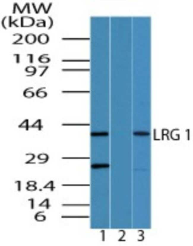 anti-LRG1, Polyclonal, Novus Biologicals:Antibodies:Primary Antibodies