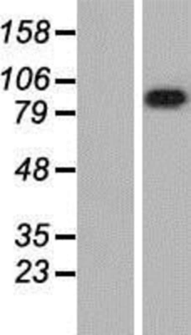 Novus Biologicals LRRC8A Overexpression Lysate (Native) 0.1mg:Life Sciences