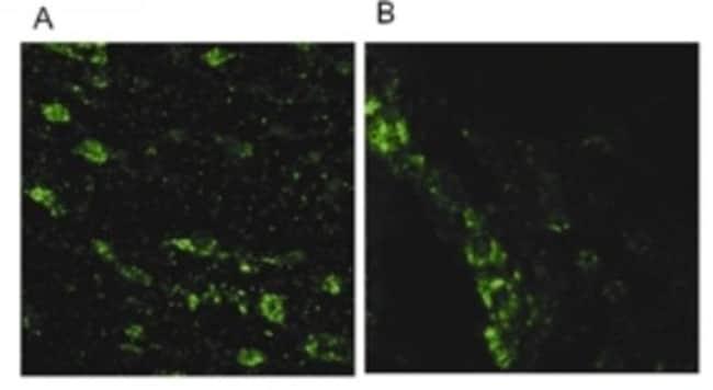 anti-LRRK2, Polyclonal, Novus Biologicals:Antibodies:Primary Antibodies