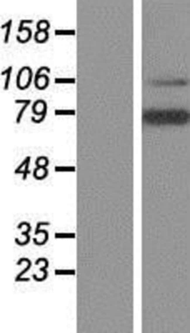 Novus Biologicals LRRN3/NLRR-3 Overexpression Lysate (Native) 0.1mg:Life
