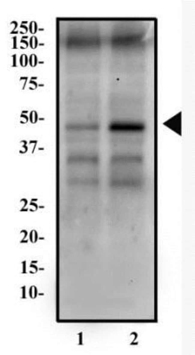 anti-LSP1, Polyclonal, Novus Biologicals:Antibodies:Primary Antibodies