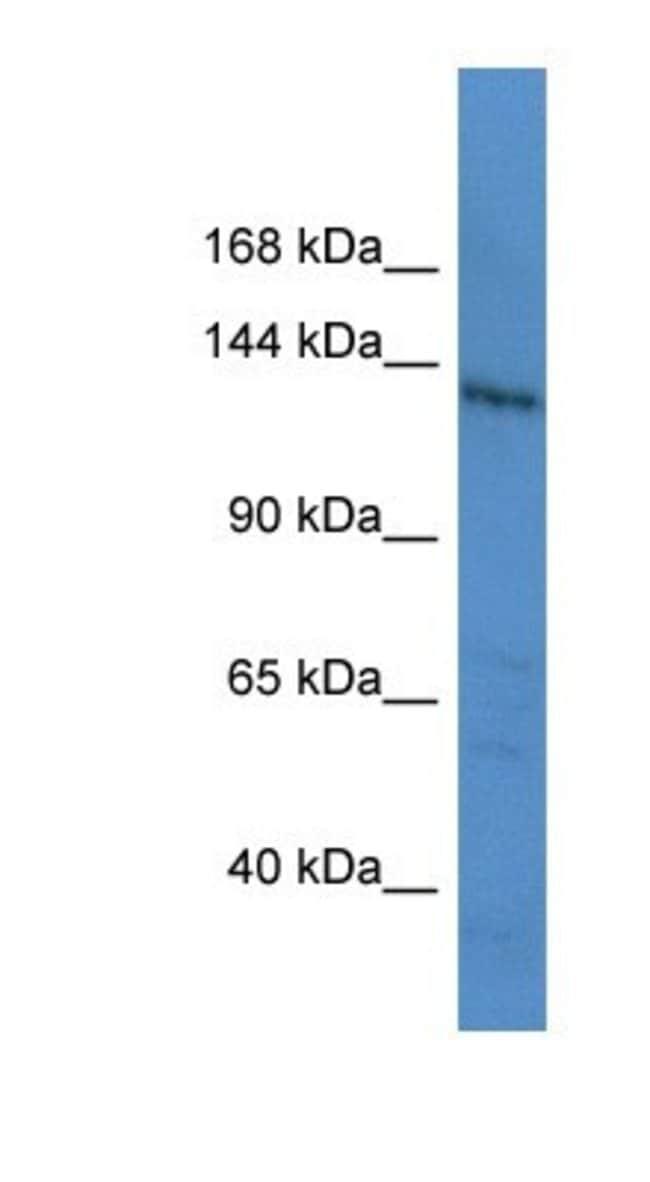 Latent TGF-beta bp1 Rabbit anti-Human, Polyclonal, Novus Biologicals 100µL;