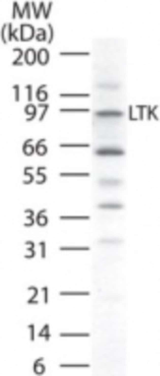 anti-LTK, Polyclonal, Novus Biologicals:Antibodies:Primary Antibodies