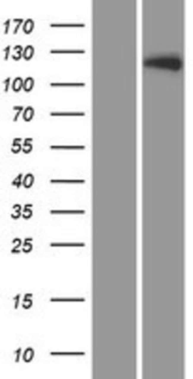 Novus Biologicals LTK Overexpression Lysate (Native) 0.1mg:Life Sciences
