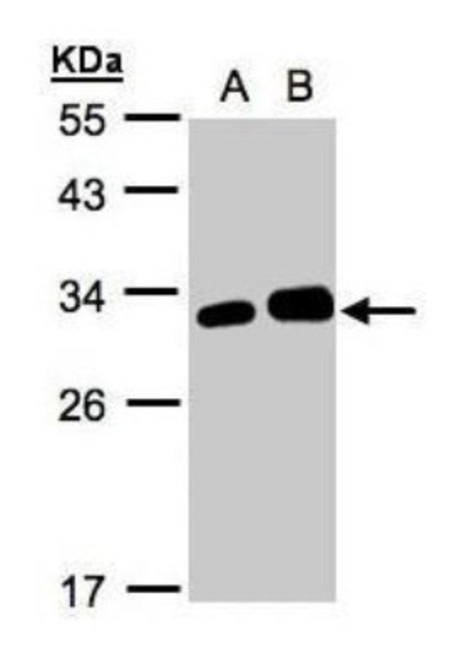 anti-Latexin, Polyclonal, Novus Biologicals 0.1mg; Unlabeled:Life Sciences