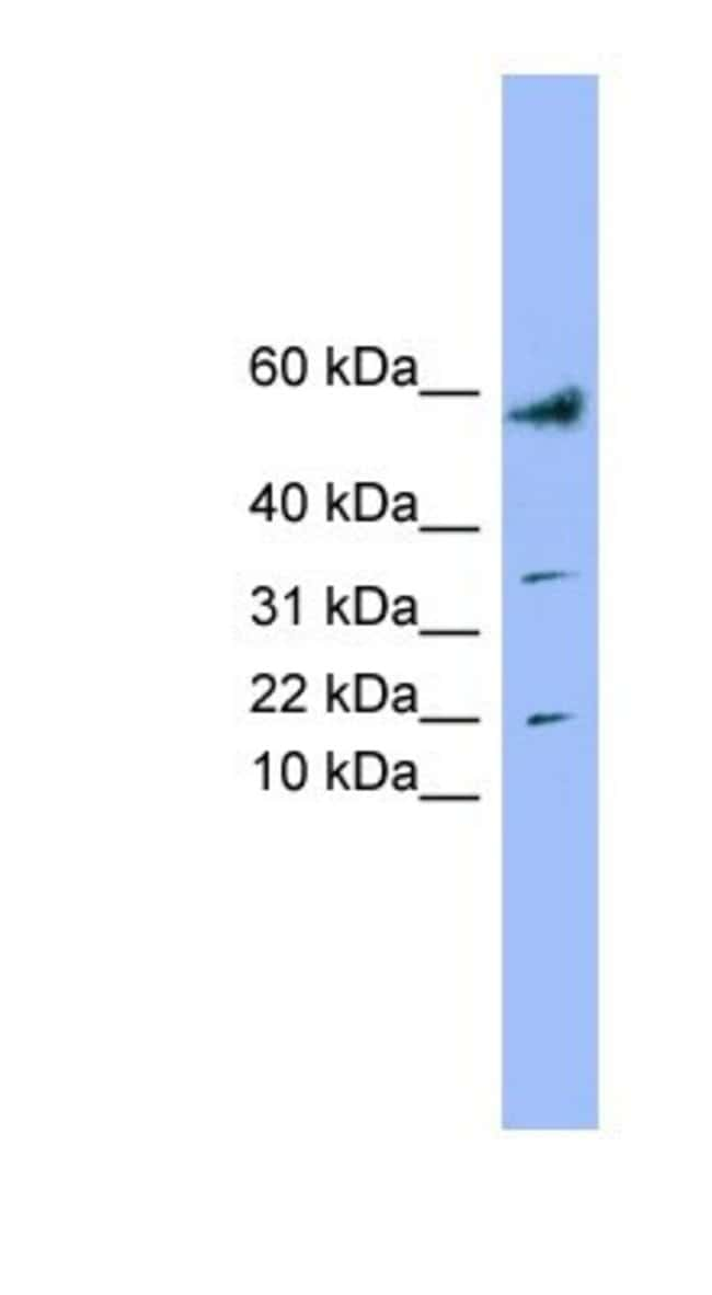LYRM1 Rabbit anti-Human, Polyclonal, Novus Biologicals 100µL; Unlabeled:Life