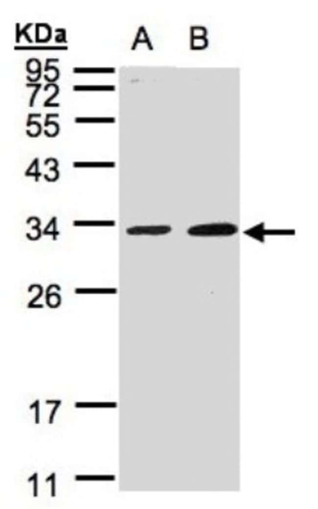 anti-MAF1, Polyclonal, Novus Biologicals 0.1mg; Unlabeled:Life Sciences