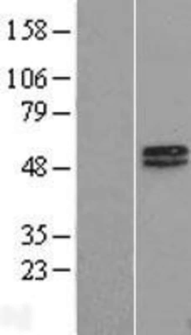 Novus Biologicals MAGEA10 Overexpression Lysate (Native) 0.1mg:Life Sciences