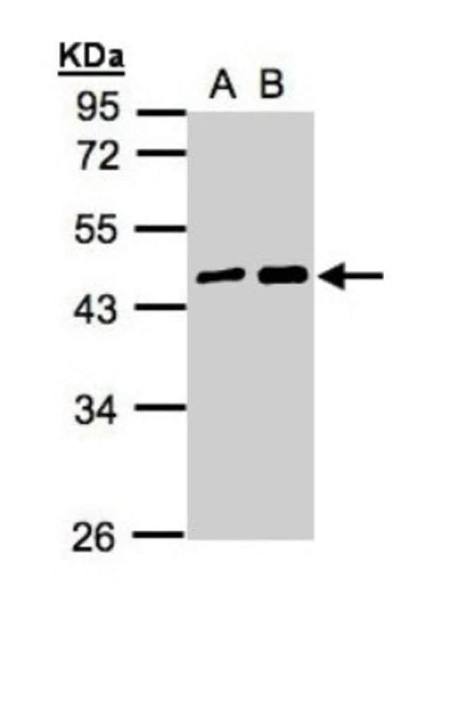 anti-MAGEA11, Polyclonal, Novus Biologicals 0.1mg; Unlabeled:Antibodies