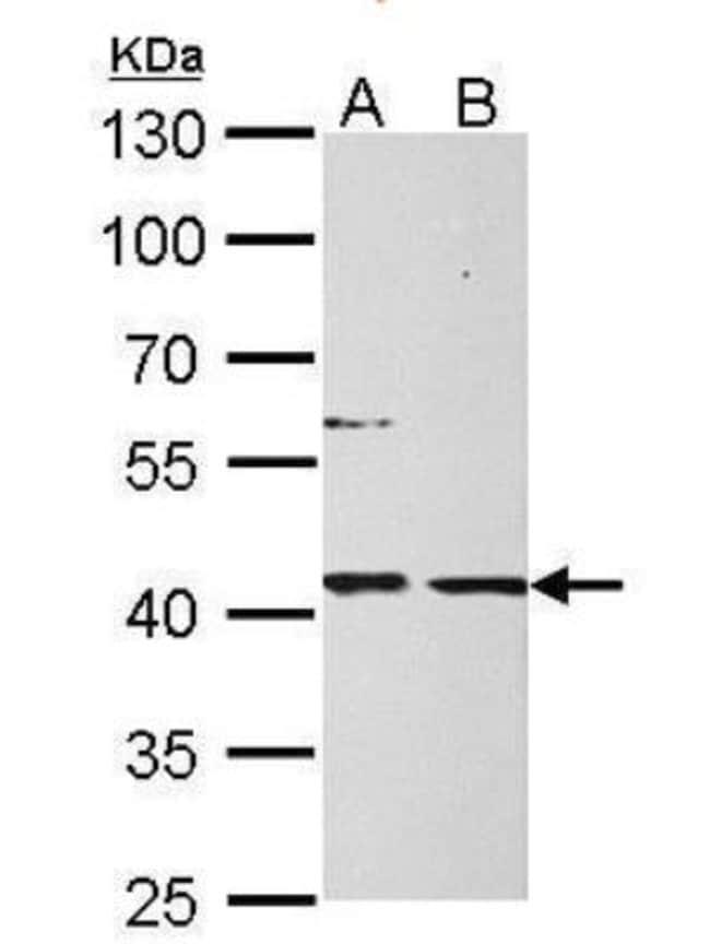 anti-Mannose Phosphate Isomerase, Polyclonal, Novus Biologicals 0.1mg;
