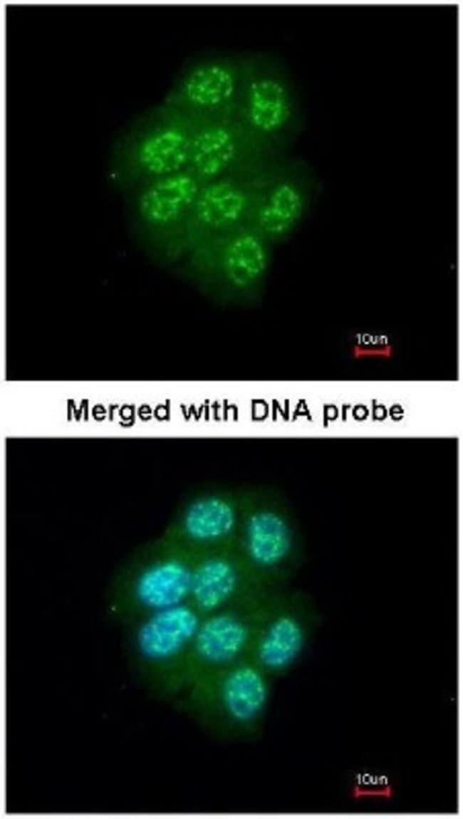 anti-MAP3K9, Polyclonal, Novus Biologicals 0.1mL; Unlabeled:Life Sciences
