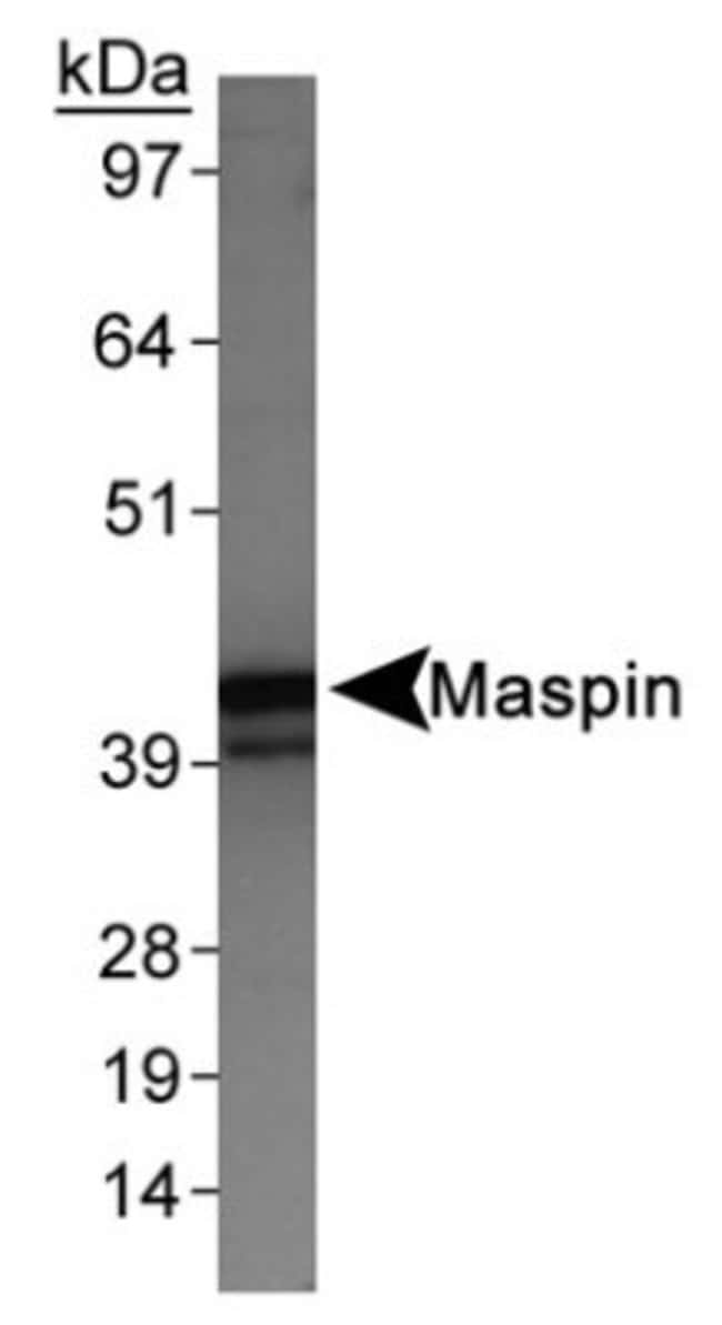 anti-Serpin B5/Maspin, Polyclonal, Novus Biologicals:Antibodies:Primary