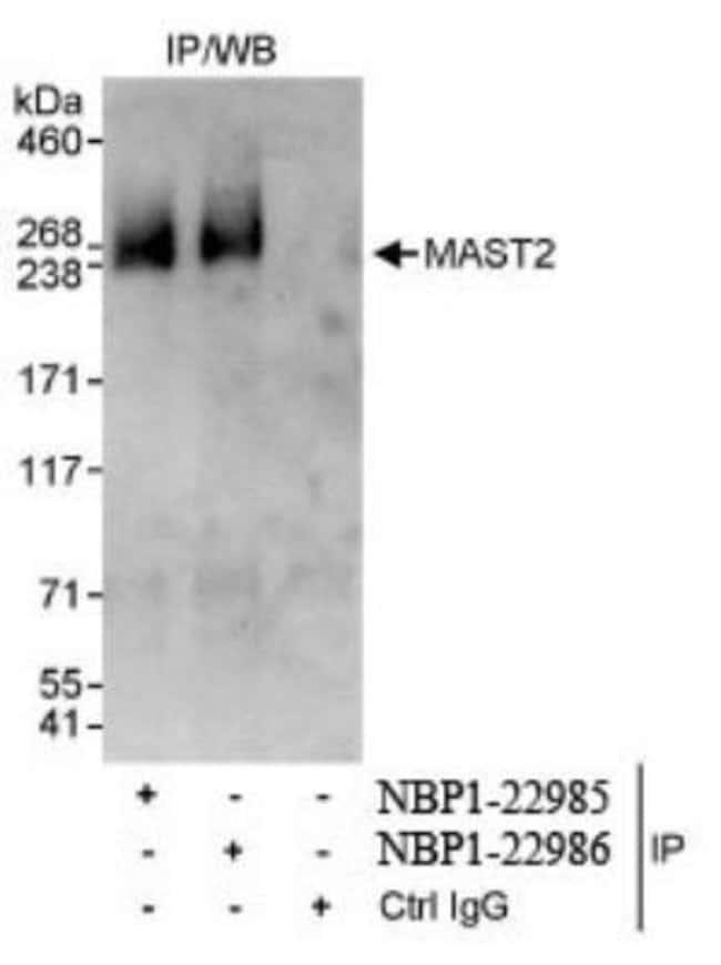 anti-MAST205, Polyclonal, Novus Biologicals 0.1mg; Unlabeled:Life Sciences