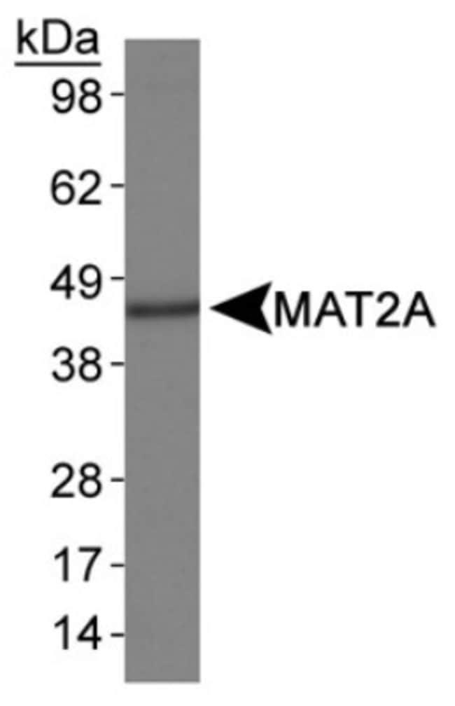 anti-MAT1/2A, Polyclonal, Novus Biologicals:Antibodies:Primary Antibodies