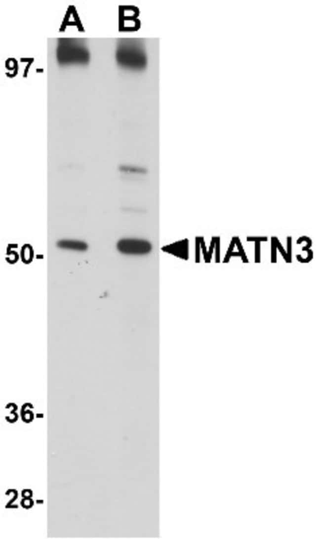 anti-MATN3, Polyclonal, Novus Biologicals 0.1mg; Unlabeled:Life Sciences