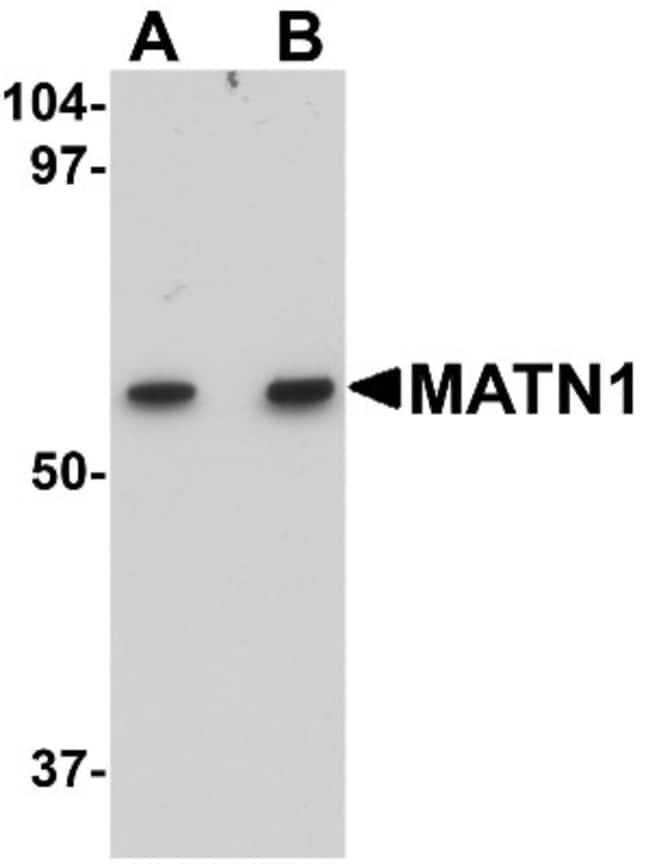 anti-Matrilin-1, Polyclonal, Novus Biologicals 0.1mg; Unlabeled:Life Sciences