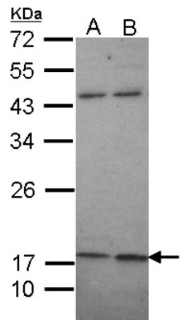 anti-Maxi Potassium channel beta, Polyclonal, Novus Biologicals 0.1mg;