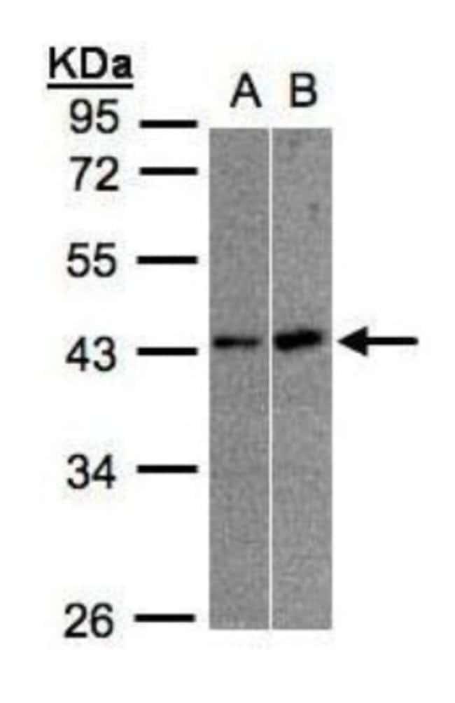 anti-MBNL3, Polyclonal, Novus Biologicals 0.1mL; Unlabeled:Life Sciences
