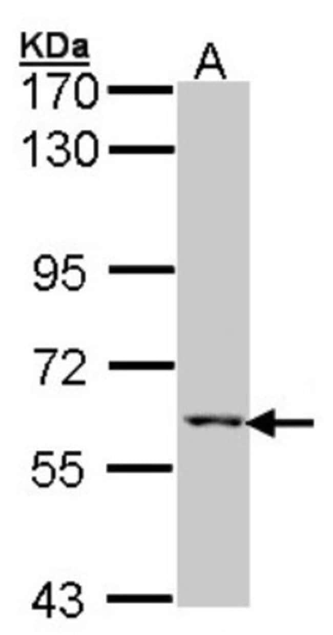 anti-MCCC2, Polyclonal, Novus Biologicals 100 ul; Unconjugated:Life Sciences