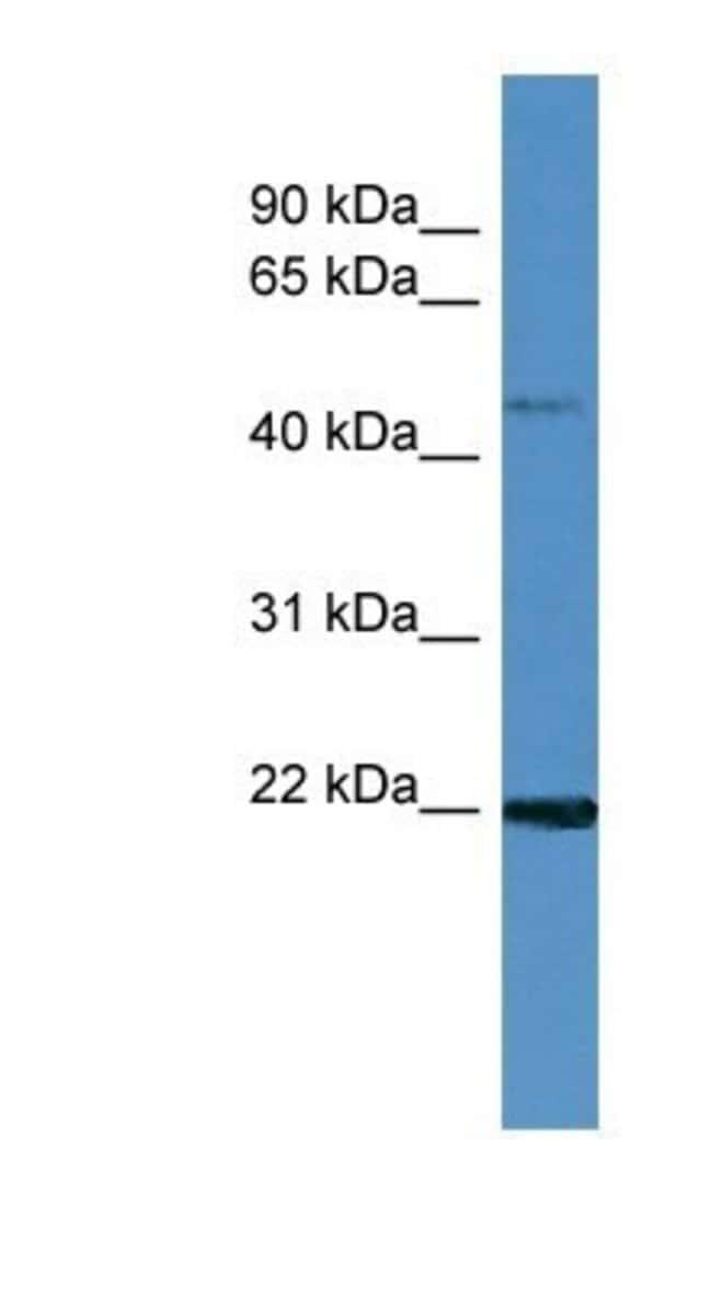 MCEE Rabbit anti-Human, Polyclonal, Novus Biologicals 20µL; Unlabeled