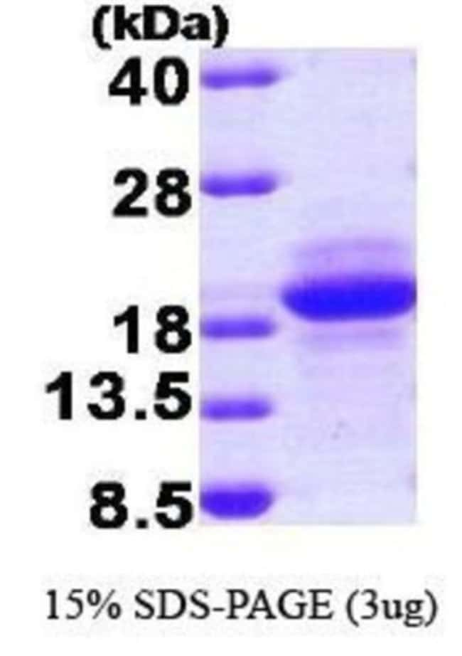 Novus Biologicals Human SDNSF/MCFD2 Protein 0.1mg; Unlabeled:Life Sciences