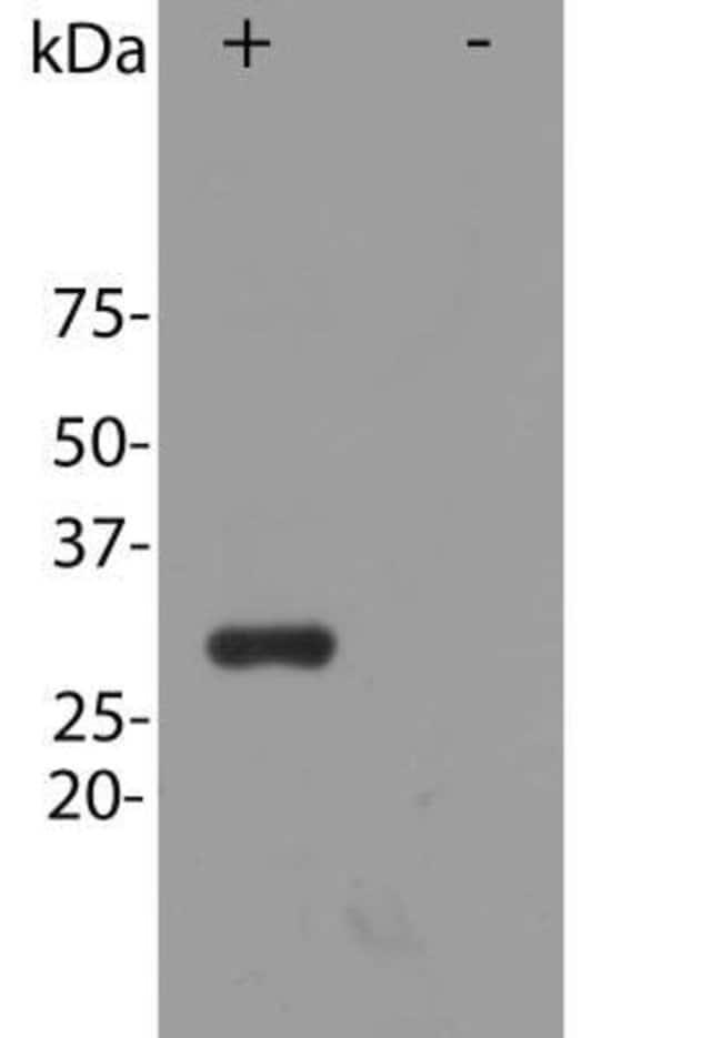 anti-mCherry, Polyclonal, Novus Biologicals:Antibodies:Primary Antibodies