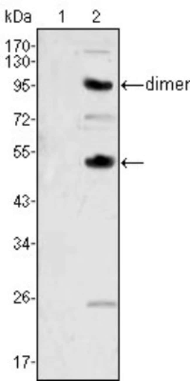 M-CSF Mouse anti-Human, Clone: 2D10, Novus Biologicals 0.025mL; Unlabeled
