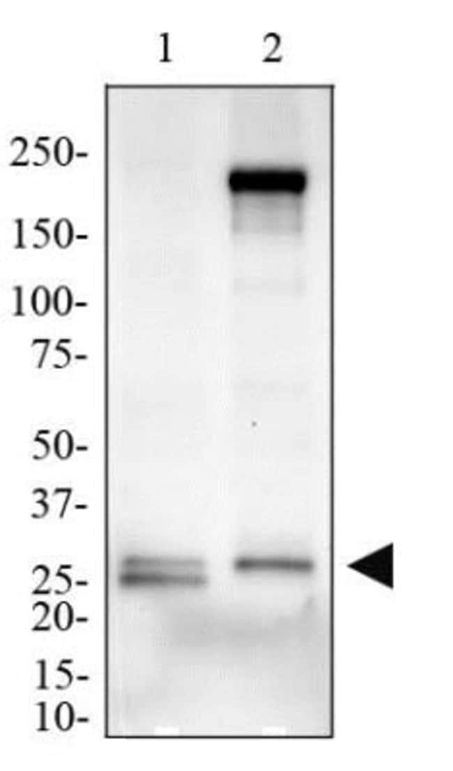 anti-MD-2, Polyclonal, Novus Biologicals:Antibodies:Primary Antibodies