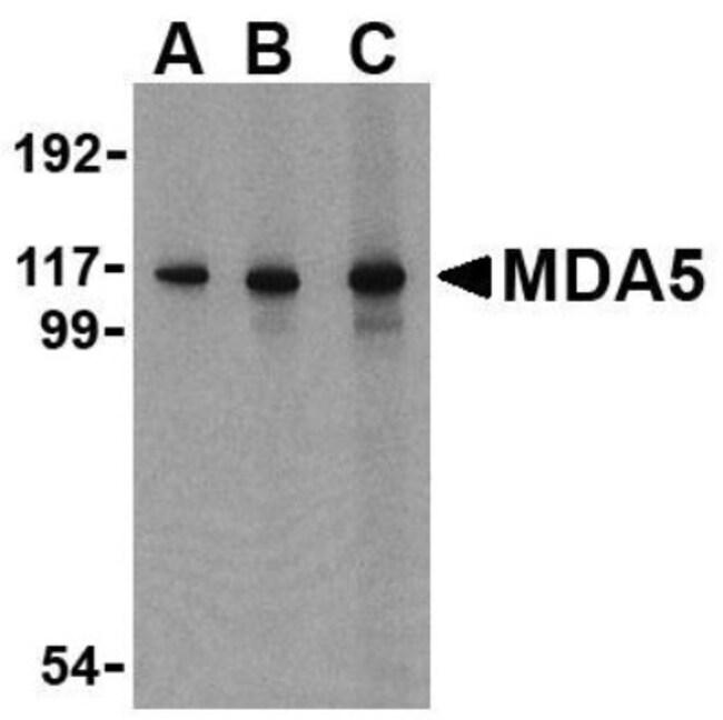 anti-MDA5, Polyclonal, Novus Biologicals 0.1mg; Unlabeled:Life Sciences