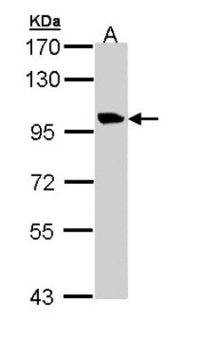 anti-Meckelin, Polyclonal, Novus Biologicals 0.1mg; Unlabeled:Antibodies