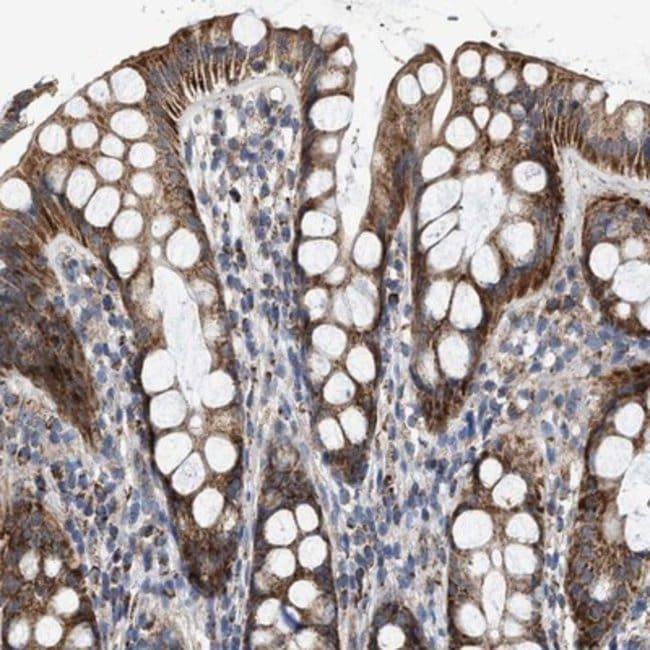 anti-MECR, Polyclonal, Novus Biologicals 0.1mL; Unlabeled:Life Sciences