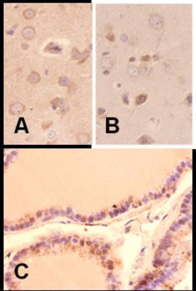 anti-Melatonin Receptor 1B, Polyclonal, Novus Biologicals:Antibodies:Primary