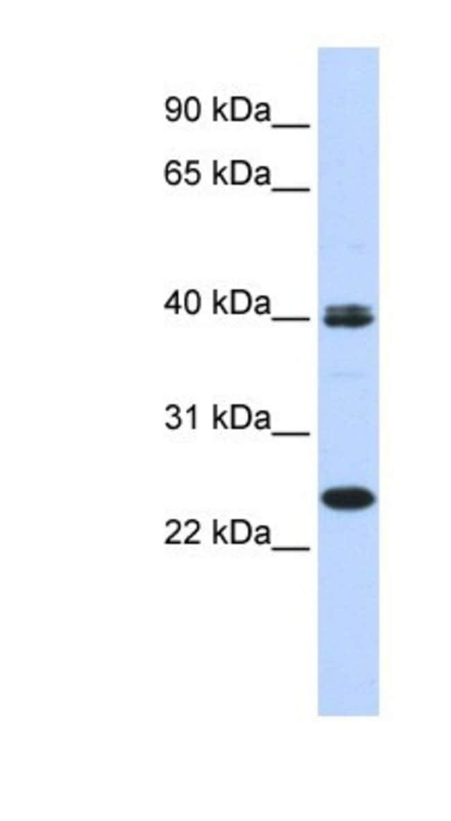 Mesp1 Rabbit anti-Human, Canine, Polyclonal, Novus Biologicals 0.05mg;