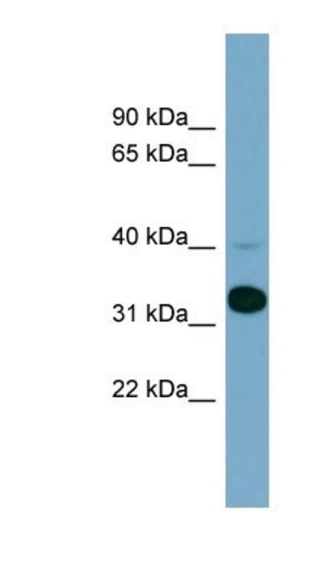 Methionine Aminopeptidase 1/METAP1 Rabbit anti-Human, Polyclonal, Novus