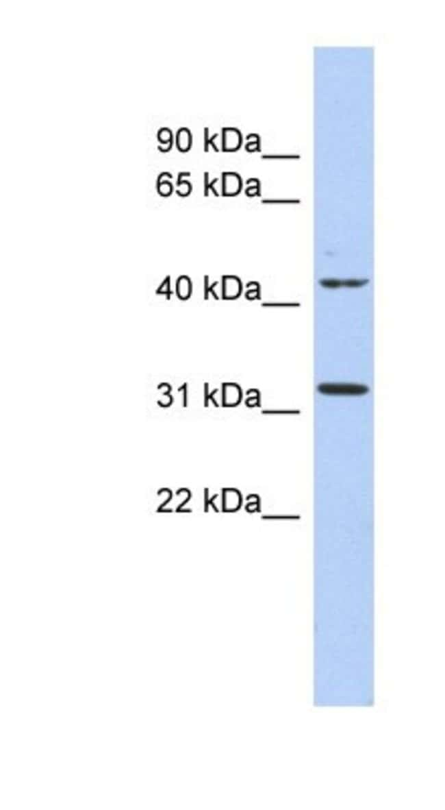 Methyltransferase like 6 Rabbit anti-Human, Polyclonal, Novus Biologicals