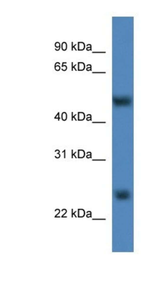 METTL4 Rabbit anti-Rat, Polyclonal, Novus Biologicals 20µL; Unlabeled