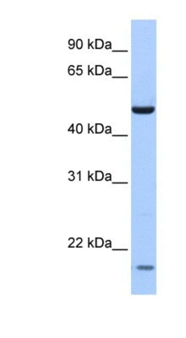 MGC13138 Rabbit anti-Human, Polyclonal, Novus Biologicals 100µL; Unlabeled:Life