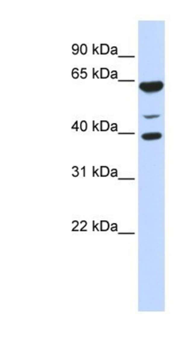 MGC13138 Rabbit anti-Human, Polyclonal, Novus Biologicals 20µL; Unlabeled