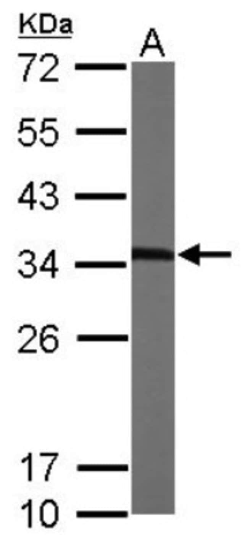 anti-MMACHC, Polyclonal, Novus Biologicals 0.1mg; Unlabeled:Life Sciences