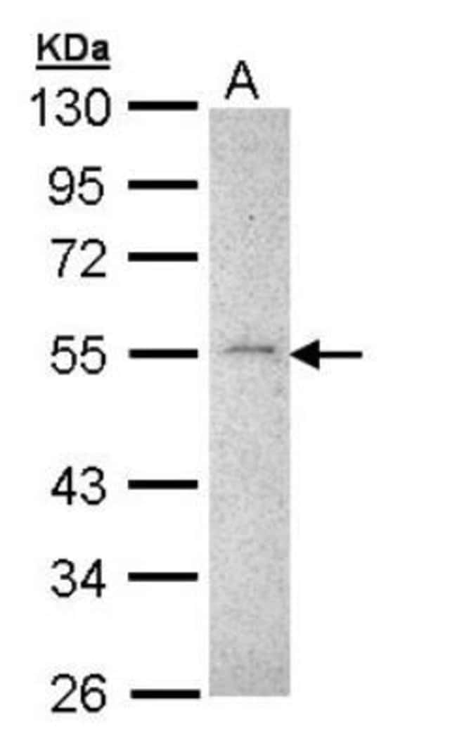 anti-MMP-16/MT3-MMP, Polyclonal, Novus Biologicals 0.1mg; Unlabeled:Life
