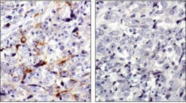 anti-MMP-7, Polyclonal, Novus Biologicals:Antibodies:Primary Antibodies